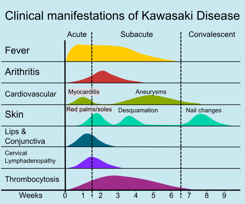 Clinical manifestations of Kawasaki Disease over a period of time.